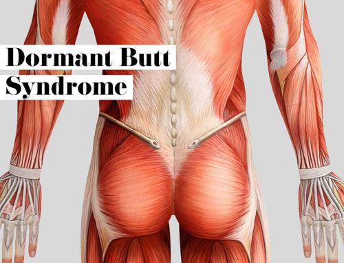 Dormant Butt Syndrome